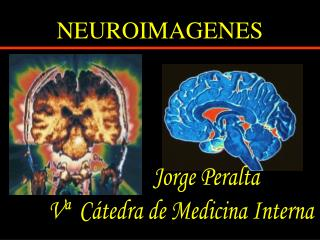 NEUROIMAGENES