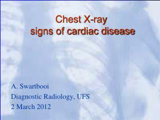 Chest X-ray  signs of cardiac disease