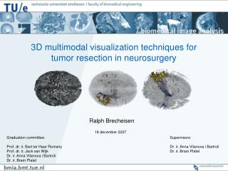 3D multimodal visualization techniques for tumor resection in neurosurgery