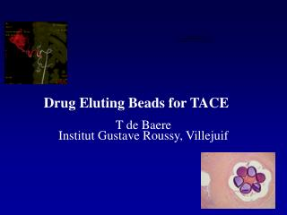 Drug Eluting Beads for TACE