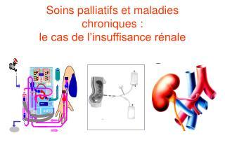 Soins palliatifs et maladies chroniques :  le cas de l'insuffisance rénale