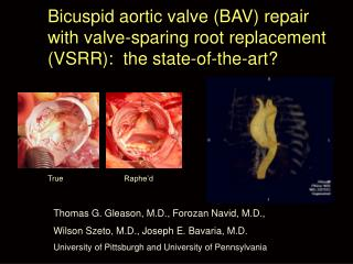 Bicuspid aortic valve BAV repair with valve-sparing root replacement VSRR:  the state-of-the-art