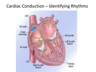 Cardiac Conduction – Identifying Rhythms