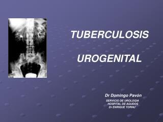 TUBERCULOSIS                  UROGENITAL Dr Domingo Pavón
