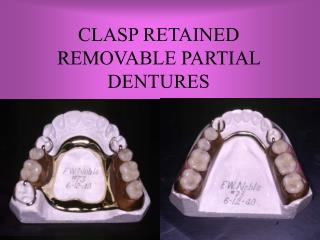CLASP RETAINED  REMOVABLE PARTIAL DENTURES
