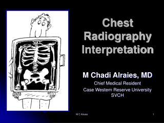 Chest Radiography Interpretation