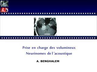Prise  en  charge  des  volumineux   Neurinomes  de l 'acoustique