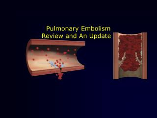 Pulmonary Embolism Review and An Update