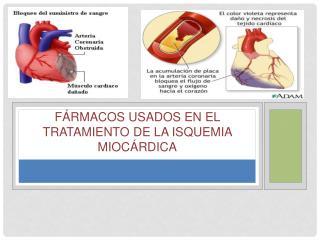 Fármacos usados en el tratamiento de la isquemia Miocárdica