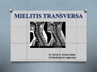 MIELITIS TRANSVERSA