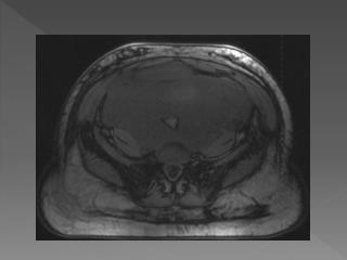 Aggressive  Angiomyxoma