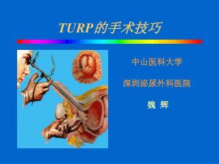 TURP 的手术技巧