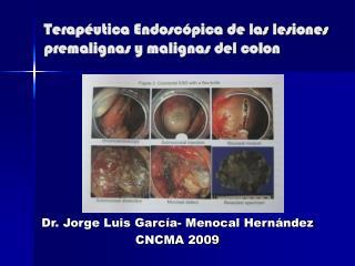 Terapéutica Endoscópica de las lesiones premalignas y malignas del colon