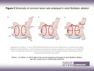 Figure 2  Schematic of common lesion sets employed in atrial fibrillation ablation