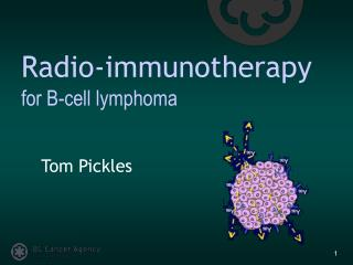 Radio-immunotherapy  for B-cell lymphoma