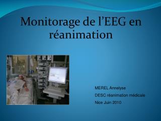 Monitorage de l'EEG en réanimation