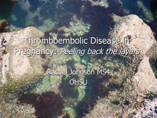 Thromboembolic Disease in Pregnancy:  Peeling back the layers
