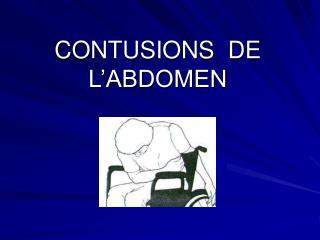 CONTUSIONS  DE  L'ABDOMEN