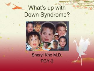 What's up with  Down Syndrome?