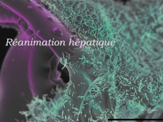 Réanimation hépatique