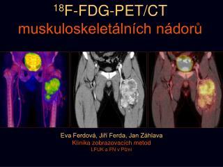 18 F-FDG-PET/CT muskuloskeletálních nádorů