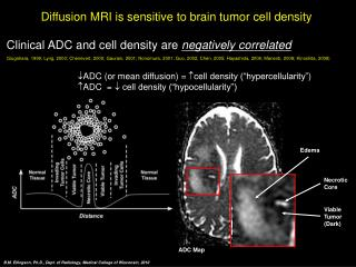 Diffusion MRI is sensitive to brain tumor cell density