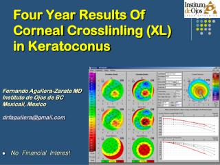 Four Year Results  Of  Corneal Crosslinling  (XL)   in  Keratoconus
