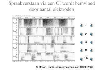 Spraakverstaan via een CI wordt beïnvloed door aantal elektroden