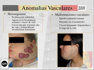 Anomalias Vasculares