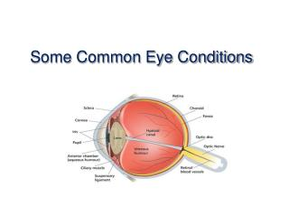 Some Common Eye Conditions