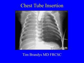 Chest Tube Insertion