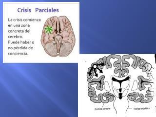 Características de las crisis  tónico-clónicas generalizadas