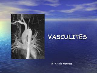 VASCULITES