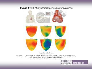 Figure 1  PET of myocardial perfusion during stress