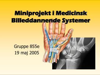 Miniprojekt i Medicinsk Billeddannende Systemer