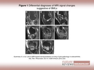 Figure 1 Differential diagnoses of MRI signal changes suggestive of BMLs