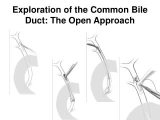 Exploration of the Common Bile Duct: The Open Approach