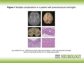 Figure 1  Multiple complications in a patient with pneumococcal meningitis