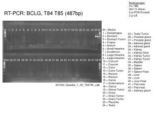 RT-PCR: BCLG, T84 T85 (487bp)