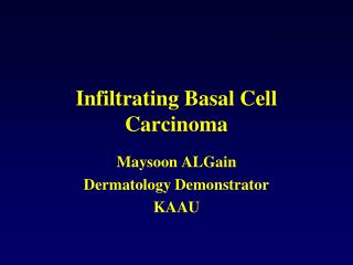 Infiltrating Basal Cell Carcinoma