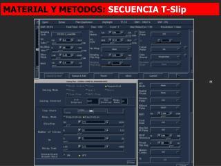 MATERIAL Y METODOS:  SECUENCIA T-Slip