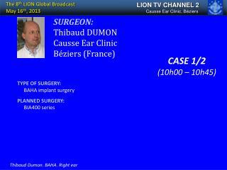 SURGEON: Thibaud DUMON Causse Ear Clinic Béziers (France)