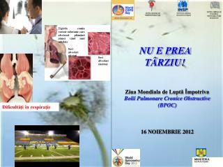Ziua Mondiala de Luptă Împotriva Bolii Pulmonare Cronice Obstructive (BPOC) 16 NOIEMBRIE 2012