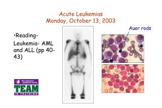 Acute Leukemias Monday, October 13, 2003