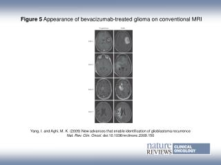 Figure 5 Appearance of bevacizumab‑treated glioma on conventional MRI