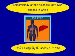 Epidemiology of non-alcoholic fatty liver  disease in China