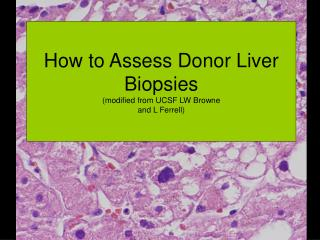 How to Assess Donor Liver Biopsies (modified from UCSF LW Browne  and L Ferrell)