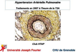 Hypertension Art rielle Pulmonaire  Traitements en 2007   l heure de la T2A