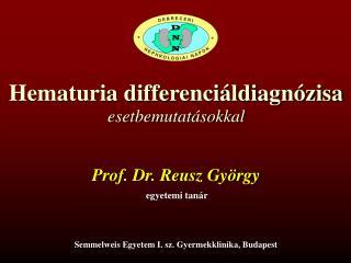 Hematuria differenciáldiagnózisa