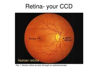 Retina- your CCD
